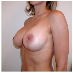 Breast Lift & Augmentation Beverly Hills