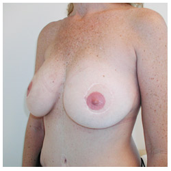 Breast Reconstruction TRAM Flap