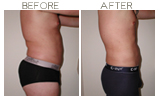 Liposuction Beverly Hills
