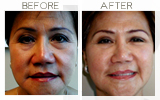 Juvederm to Lower Eyelid Beverly Hills