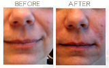 Radiesse to Nasolabial Folds Beverly Hills
