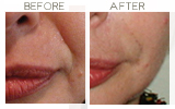 Restylane to Nasolabial Folds Beverly Hills